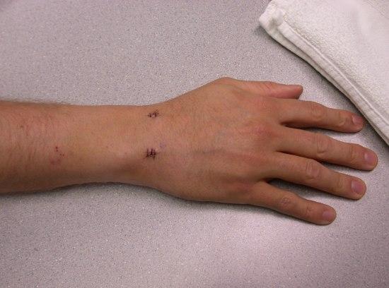 Wrist Surgery